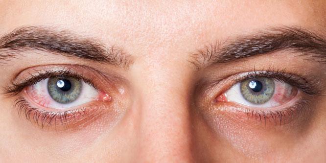 bränner i ögonen